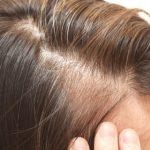 コラーゲンサプリで育毛効果を最大にする方法!飲み方から買い方まで