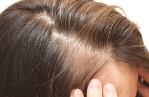 コラーゲン 育毛
