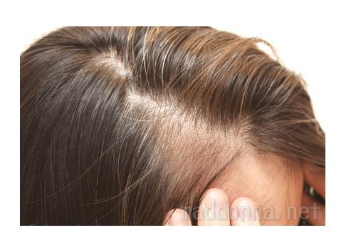 薄毛 育毛 女性の髪