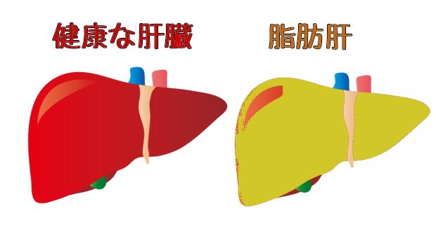 脂肪肝と健康な肝臓の比較