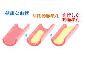 動脈硬化 血管 血液