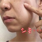 レチノールの美肌効果や副作用とは?正しい使い方でしわやたるみ、シミまで対策!