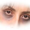目の周りに黒ずみが!これって病気?原因と治す方法